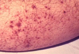 images of petechiae