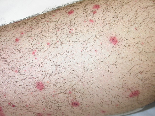 Picture 2 – Petechiae Photo