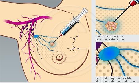 Breast cancer lymph node surgery