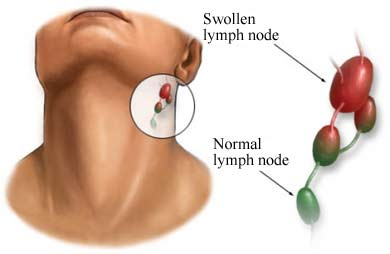 Picture 1 – Swollen Lymph Node in Neck