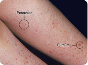 petechiae and purpura picture