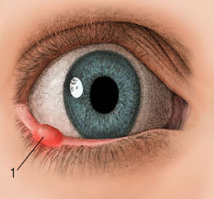 pictures of styes