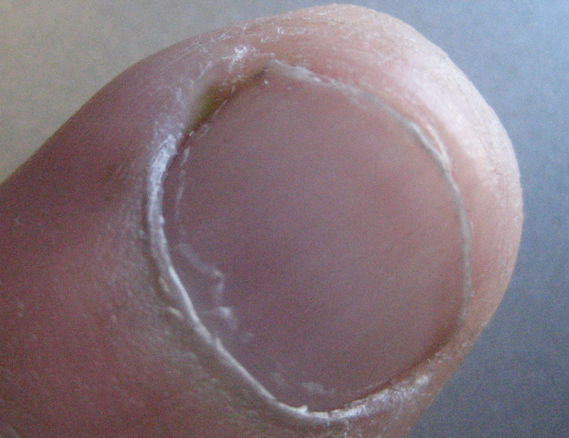 ingrown fingernail infection  causes  treatment and home remedies