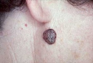 images of Seborrheic Keratosis