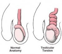 Images of Testicular Torsion