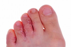 Pictures of Tinea Pedis