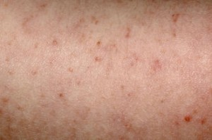 viral rash photos