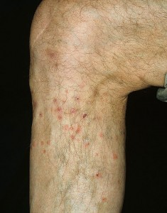 images of Flea bites on humans