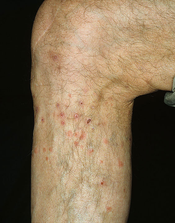 Sand Flea Bites http://www.primehealthchannel.com/flea-bites-on-humans.html