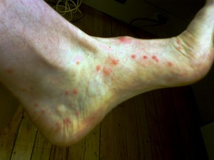 pictures of Flea bites on humans