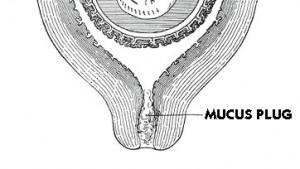 pictures of Mucus Plug