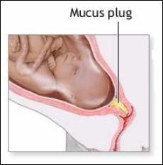 Mucus Plug picture