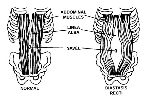 """rectus diasthesis So what really is a diastasis recti a diastasis recti is the separation of your rectus abdominis muscle at your linea alba, or your """"6-pack muscle."""