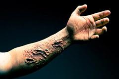 Dyshidrotic eczema for Tattoos and eczema
