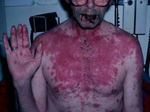 Steven Johnson Syndrome Image