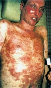 Images of Steven Johnson Syndrome