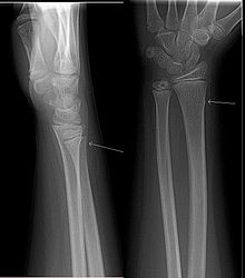 Buckle Fracture Pictures