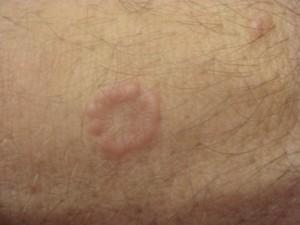 Granuloma Annulare Picture