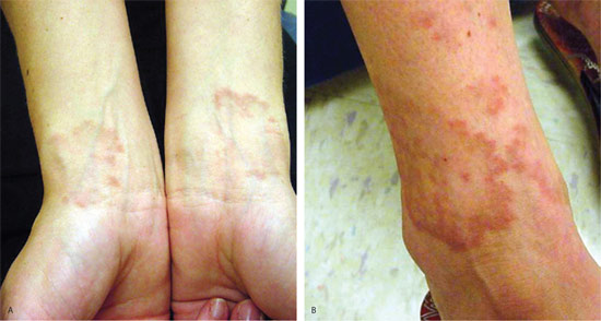 Granuloma Annulare Pictures Causes Diagnosis