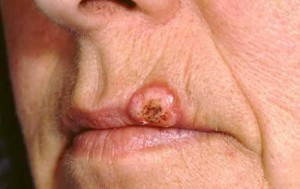 Pictures of Keratoacanthoma
