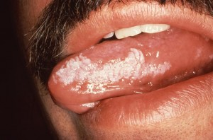 Images of Leukoplakia