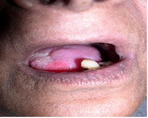 Photos of Leukoplakia