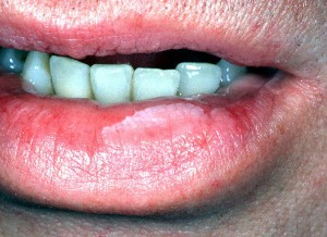 Picture of Leukoplakia