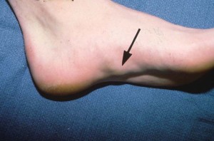 Photos of Plantar fibromatosis