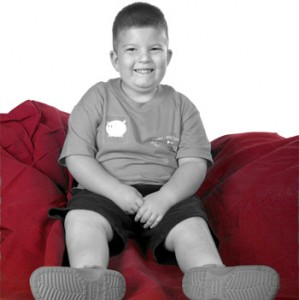 Prader Willi Syndrome Images