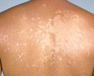 Images of Tinea Versicolor
