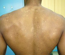 Pictures of Tinea Versicolor