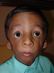 Photos of Treacher Collins Syndrome