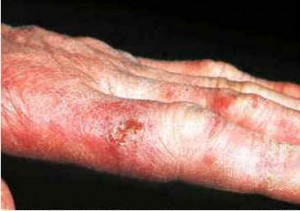 Chilblains Fingers Pictures