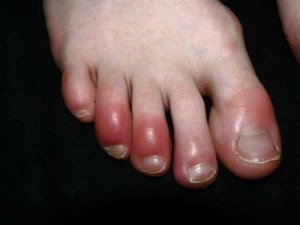 Photos of Chilblains