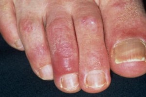 Pictures of Chilblains