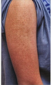 Images of Keratosis Pilaris