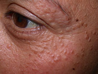 Images of Syringoma