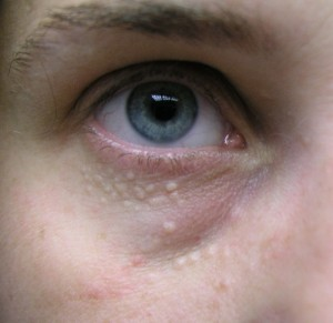 Pictures of Syringoma