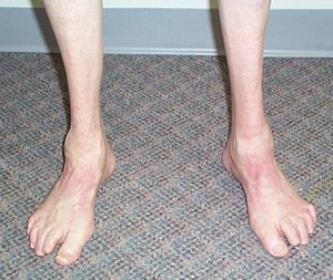 charcot marie tooth disease Photos