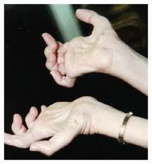 Images of charcot marie tooth disease