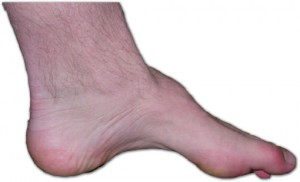 Pictures of charcot marie tooth disease