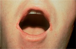 Images of Angular cheilitis