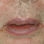Pictures of Angular cheilitis