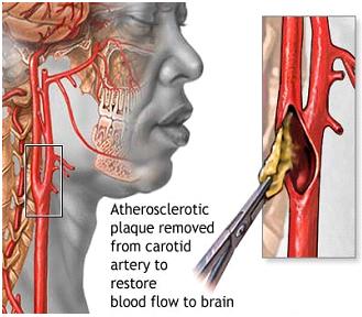 carotid endarterectomy anesthesia