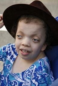Noonan Syndrome Photos