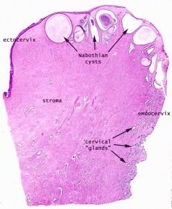 Nabothian Cysts Image