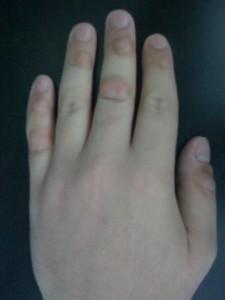 Pictures of Dermatillomania