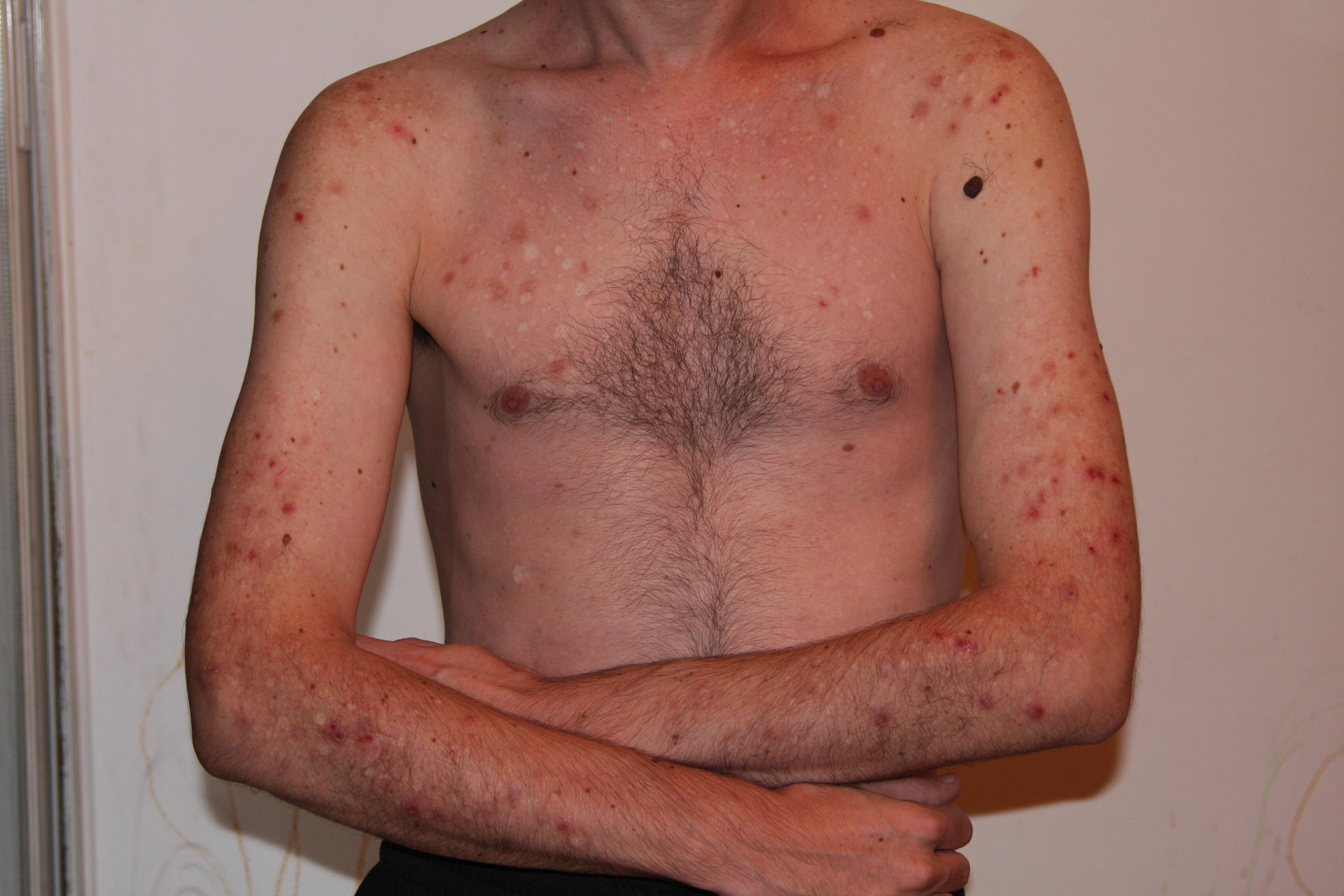 Excoriation Skin Picking Disorder