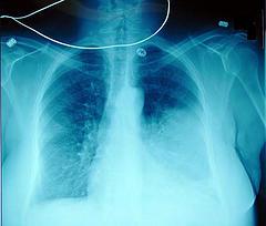 Picture of Hemoptysis