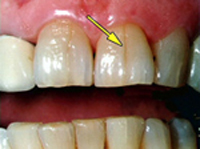 Picture of Cracked Tooth Syndrome